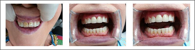 Dental Crowns and Bridges Case Study | Dentist Kallangur