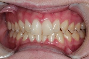 Invisalign before and after | Dentist Kallangur
