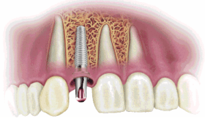 Prevent Dental Suite | Dental Implants - Dentist Kallangur