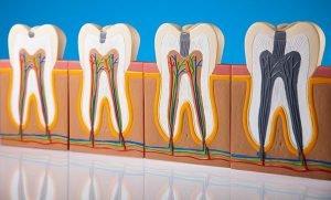 Prevent Dental Suite Tooth Decay | Dentist Kallangur