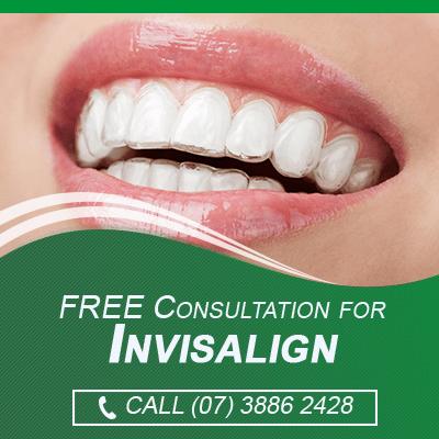 FREE Invisalign Consulation Banner