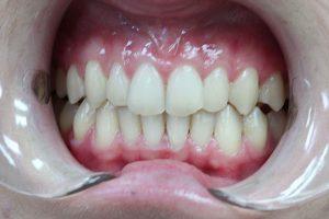 Invisalign 10 Dentist Kallangur