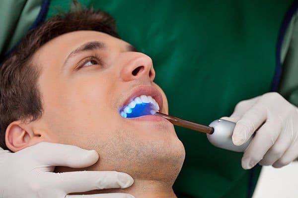 Prevent Dental Suite Dental Sealants | Dentist Kallangur