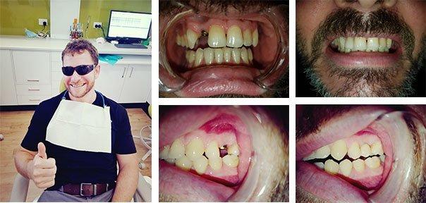 Dental Implants Happy-Customer
