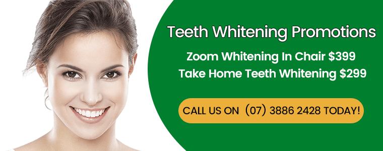 Teeth Whitening Promotions Banner Dentist Kallangur