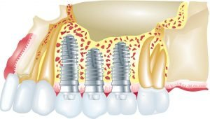 Affordable-Dental-Implants-in-Gladstone-Dentist-Gladstone