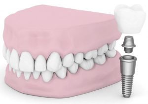 Affordable-Dental-Implants-in-Ipswich-Dentist-Ipswich