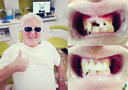 Dental-Implant-Happy-Customer-Dentist-Gladstone