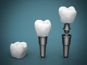 Dental-Implants-Dentist-Gold-Coast