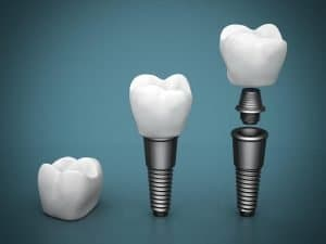 Dental Implants Dentist Gympie