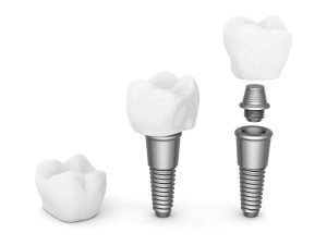 Prevent-Dental-Suite-Dental-Implants-Dentist-Ipswich