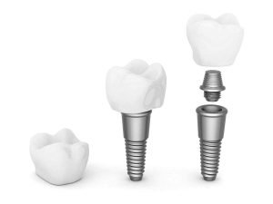 Prevent Dental Suite Dental Implants Dentist Sunshine Coast
