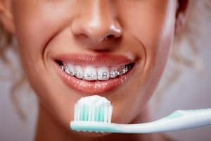kallangur dentist tips how can I keep my teeth clean when wearing braces