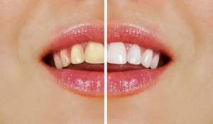 Which one is better Professional or Over-the-Counter Teeth Whitening Kallangur