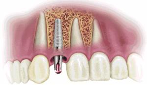 dental implants north brisbane