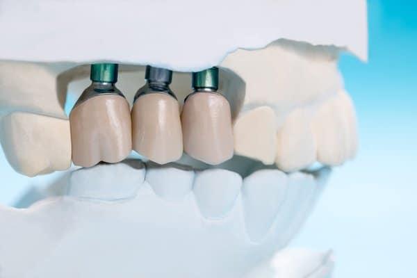 dental implants in albany creek