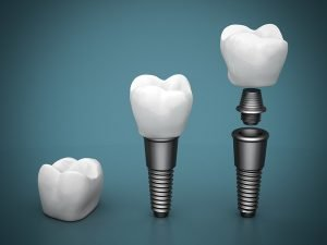 dental implants in beachmere
