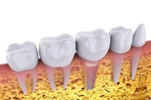 dental implants in south brisbane